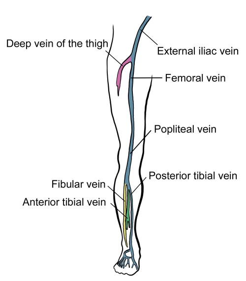 small resolution of deep vein thrombosis