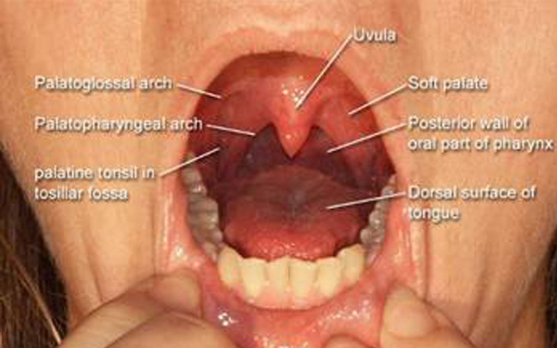 Acute Sore Throat RCEMLearning