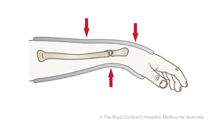 Clinical Practice Guidelines : Distal radius and or ulna