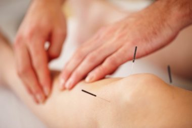 01_Acupunture_Natural_ways_to