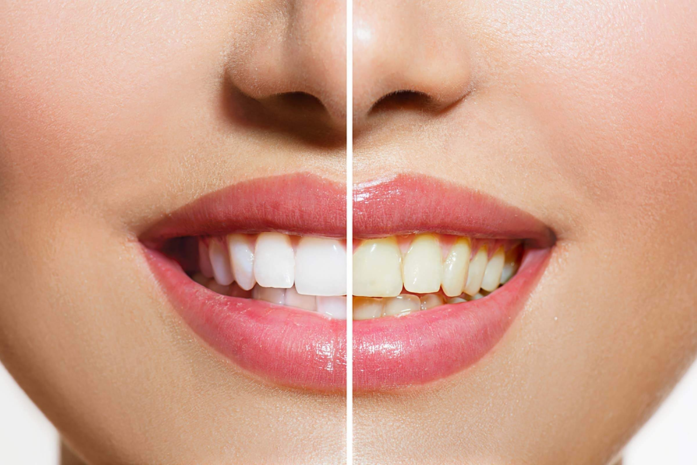 Yellow Teeth Are Actually Stronger Than Bright White Teeth ...