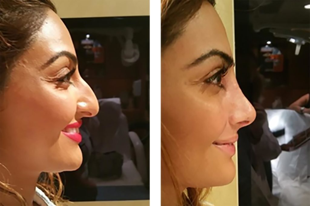 Cosmetic Transformations You Have to See to Believe