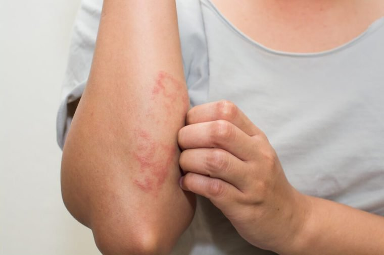 ill allergic rash dermatitis eczema skin of patient