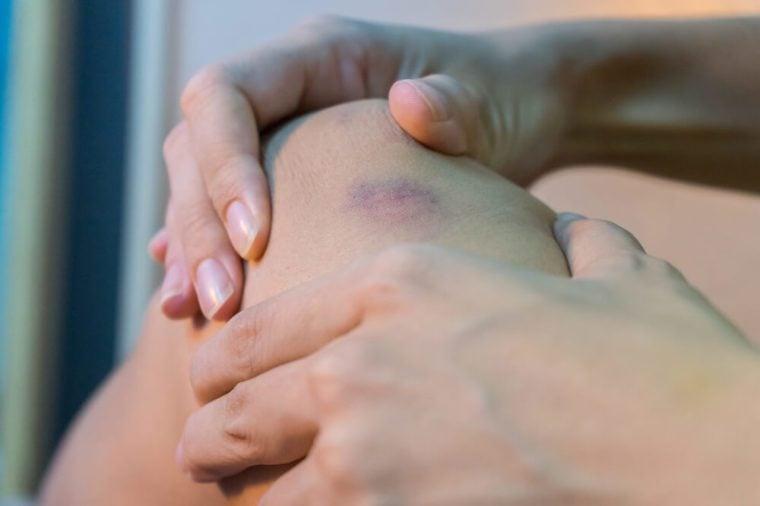 Bruise on woman's leg skin.