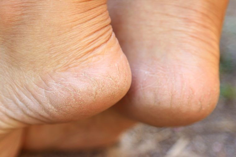 Cracked heel on woman's foot, health background to create work about people