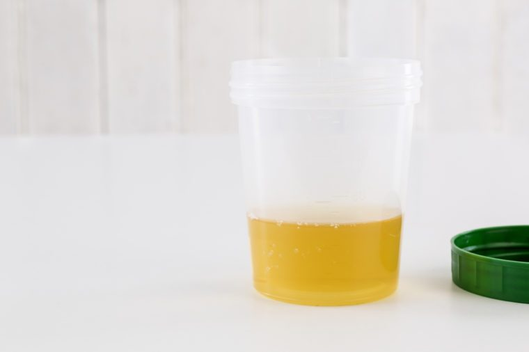 Medical urine test, close up