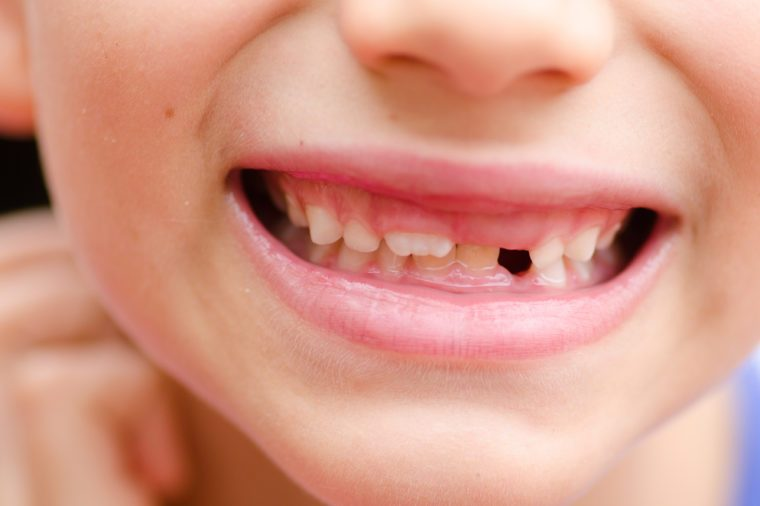 Close up detail portrait of young child with loose and missing milk teeth, happy joyful smiling.