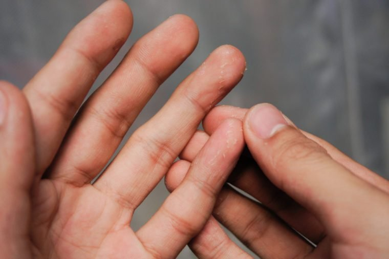 Pinched Nerve Symptoms You Should Know | The Healthy