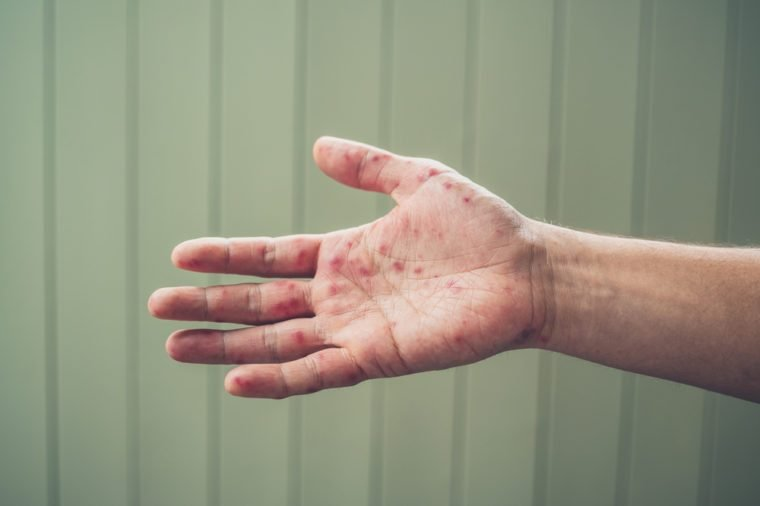A young man is showing his hand with spots and rash from hand foot and mouth disease