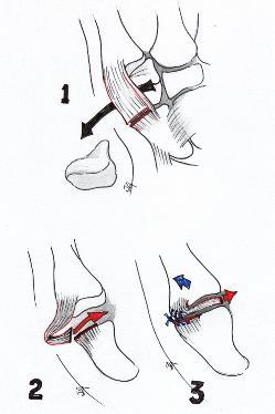 Basal thumb arthritis
