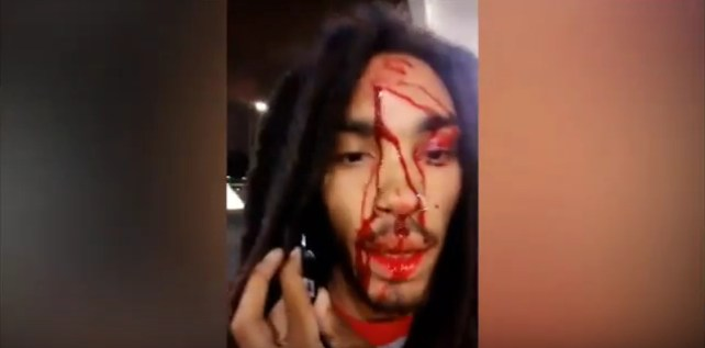 Rapper gets shot in the head and posts video