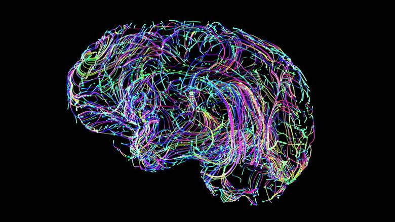 Картинки по запросу изображение электрической активности мозга
