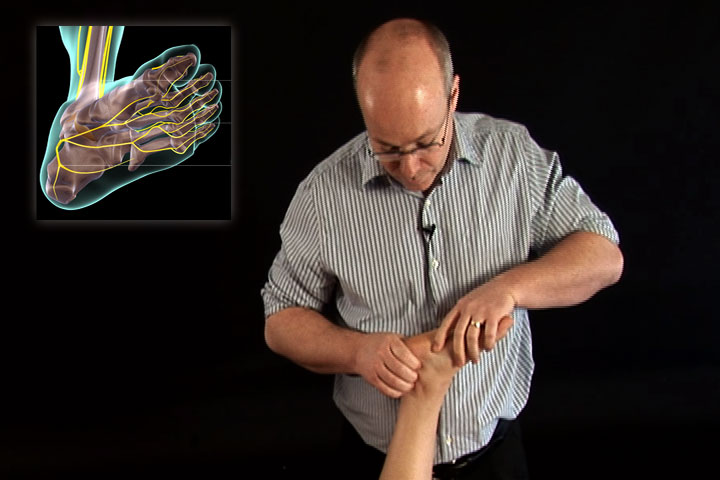 Nerve Mobilization for the back and leg DVD video  Real