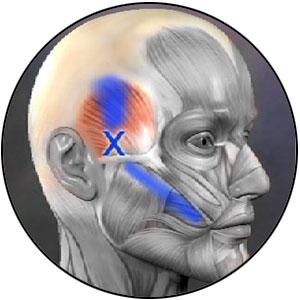 Orthopedic Massage online class