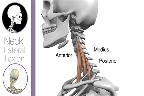Neck3 Limited lateral flexion  Real Bodywork
