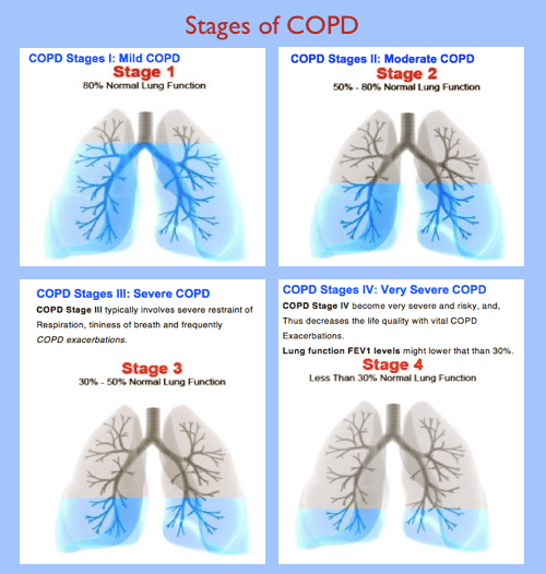4-Stages-of-COPD