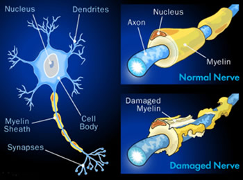 what is nerve damage? image of regular and damaged nerves