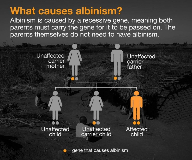 Debunking Another We Are Not Albinos Study