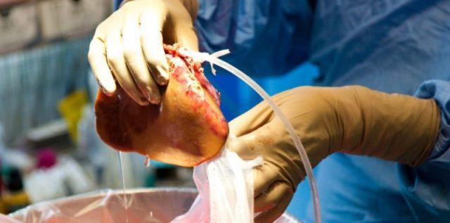"""Résultat de recherche d'images pour """"trafic d'organes,"""""""