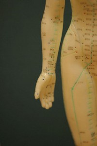 Acupuncture Beats Pharmaceuticals for Sciatica Pain | Heal ...