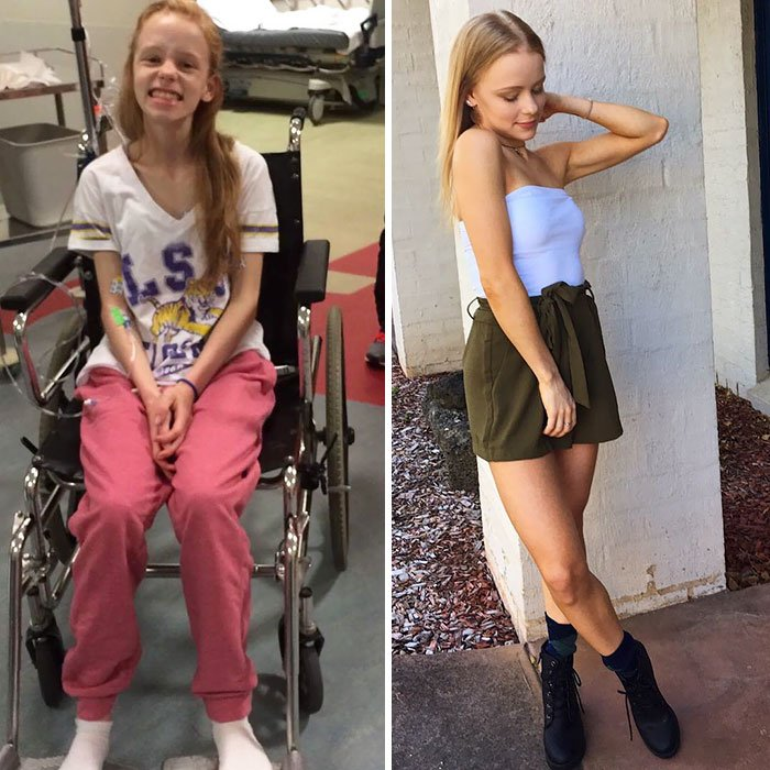 anorexia recovery before after