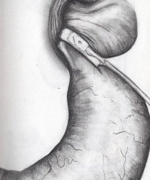 Weight-loss surgery drawings