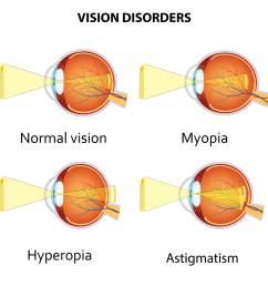 myopia hyperopia and astigmatism explained [ 1600 x 1600 Pixel ]