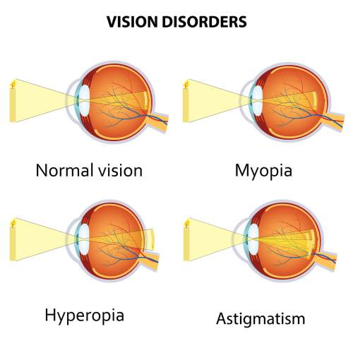 small resolution of myopia hyperopia and astigmatism explained