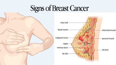 Photo of What are the Early Symptoms & Signs of Breast Cancer?