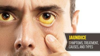 Photo of Jaundice – Causes, Treatment and Symptoms