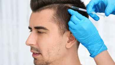Photo of 5 Myths That May Scare You from Hair Transplant
