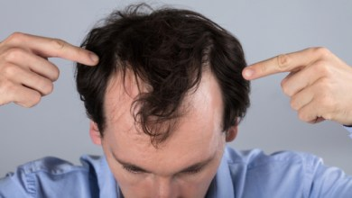 Photo of Is Hair Transplant Beneficial For My Hair? Is Hair Transplanting A Good Choice?