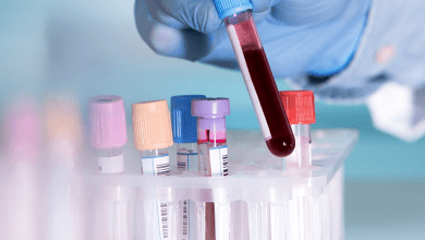 Photo of 10 Essential Blood Tests Everyone should have Each Year
