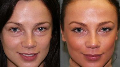 Photo of Is PRP Facial Safe During Pregnancy?
