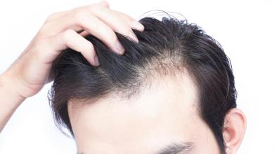 Photo of Choosing The Right Hair Transplant Surgeon & Clinic.