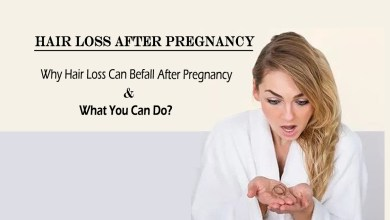 Photo of Why Hair Loss Can Befall After Pregnancy and What You Can Do?