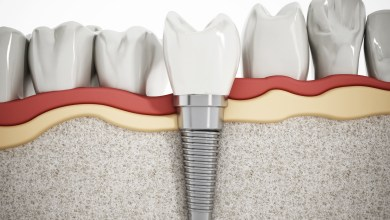 Photo of All About the Price of Dental Implants
