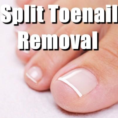 split toenail - pictures photos