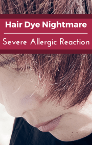 drs hair dye allergic reaction