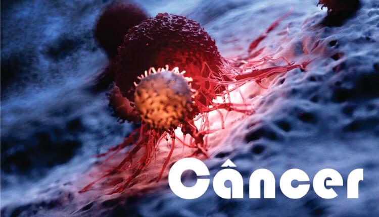 Câncer e doenças reumáticas: uma conexão perigosa