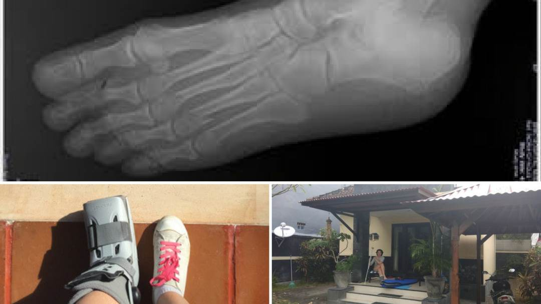Beyond Broken Bones How Injury Offered Inspirational Life Lessons