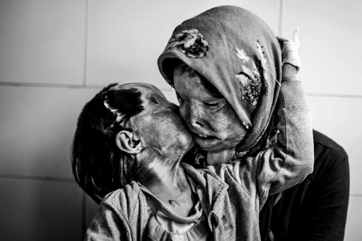 madre e hija desfiguradas por ácido comparten un beso en la mejilla