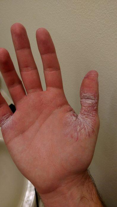 problema de piel