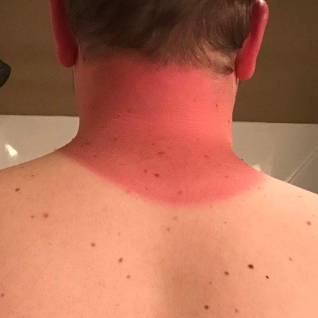 chico con el cuello quemado