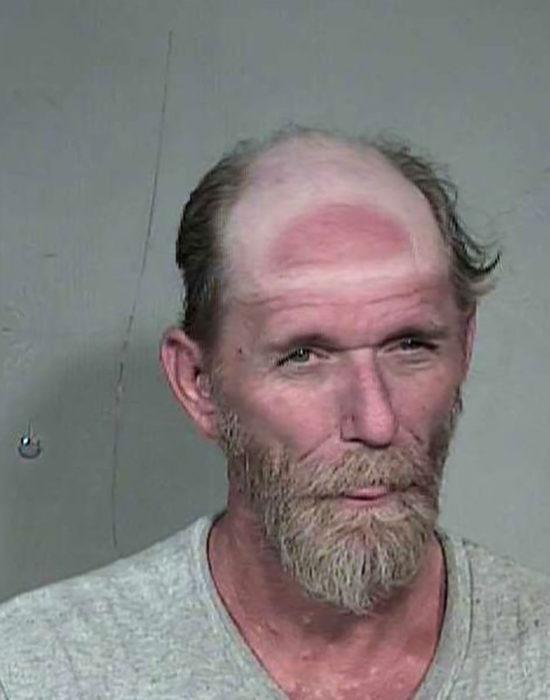 hombre con quemadura solar de su gorra