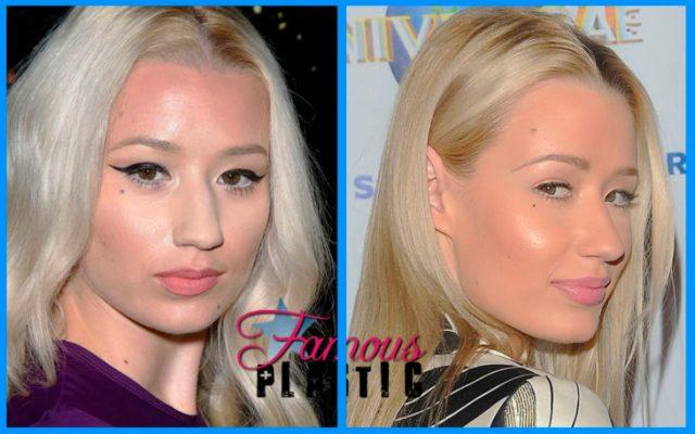 iggy azalea antes y después de la cirugía