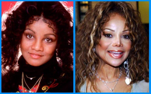 latoya jackson antes y después de la cirugía