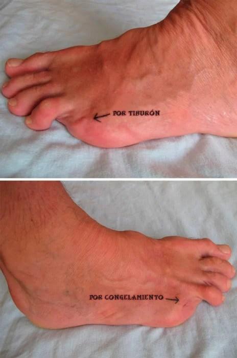 dedos meñiques del pie amputados