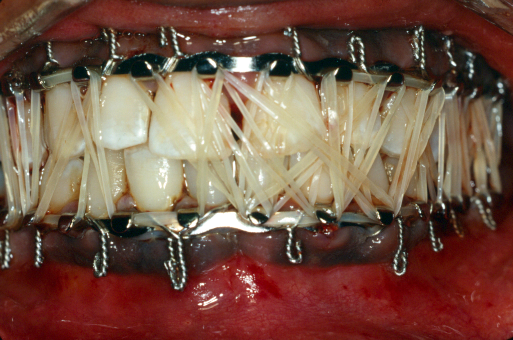 Bilderesultat for closed reduction of mandibular fracture