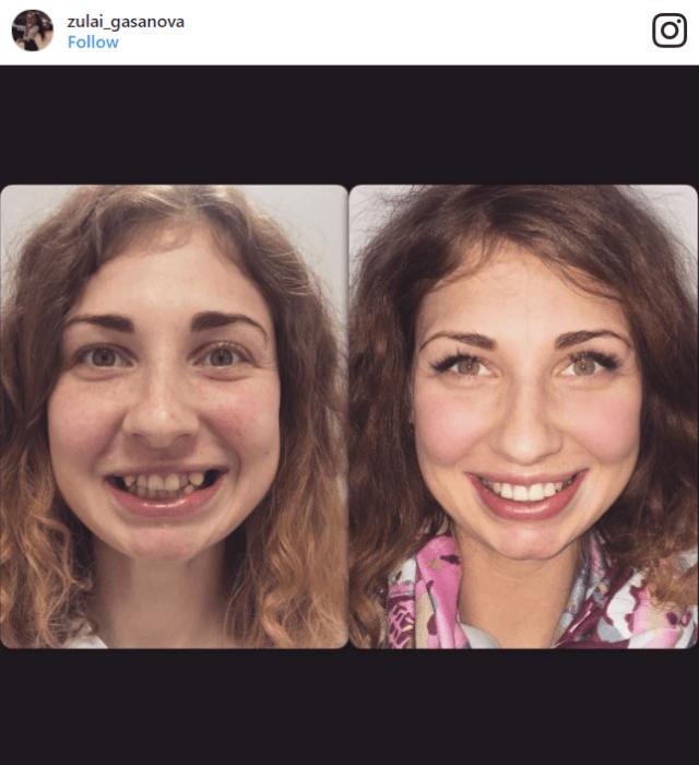 cambiar sonrisas ksenia